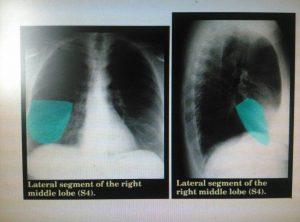 革命性肺癌药物AZD9291的仿制药为什么那么便宜