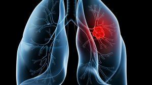 AZD9291靶向药让肺癌治疗前进一大步