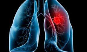 AZD9291在非小细胞肺癌患者中的表现怎么样?