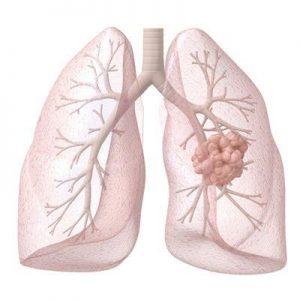 副作用少疗效大的肺癌靶向药:AZD9291