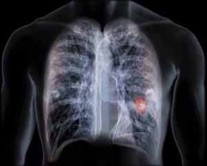 AZD9291即将被FDA批准应用于EGFR突变肺癌一线治疗