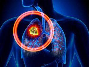 肺癌患者最后的防线是AZD9291奥斯替尼吗?