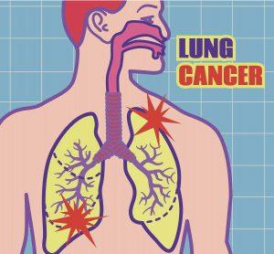 AZD9291对具有软脑膜病的非小细胞肺癌有效吗?