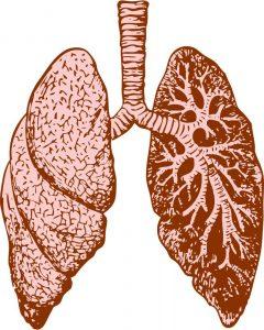 AZD9291在T790M突变的肺癌患者中显奇效