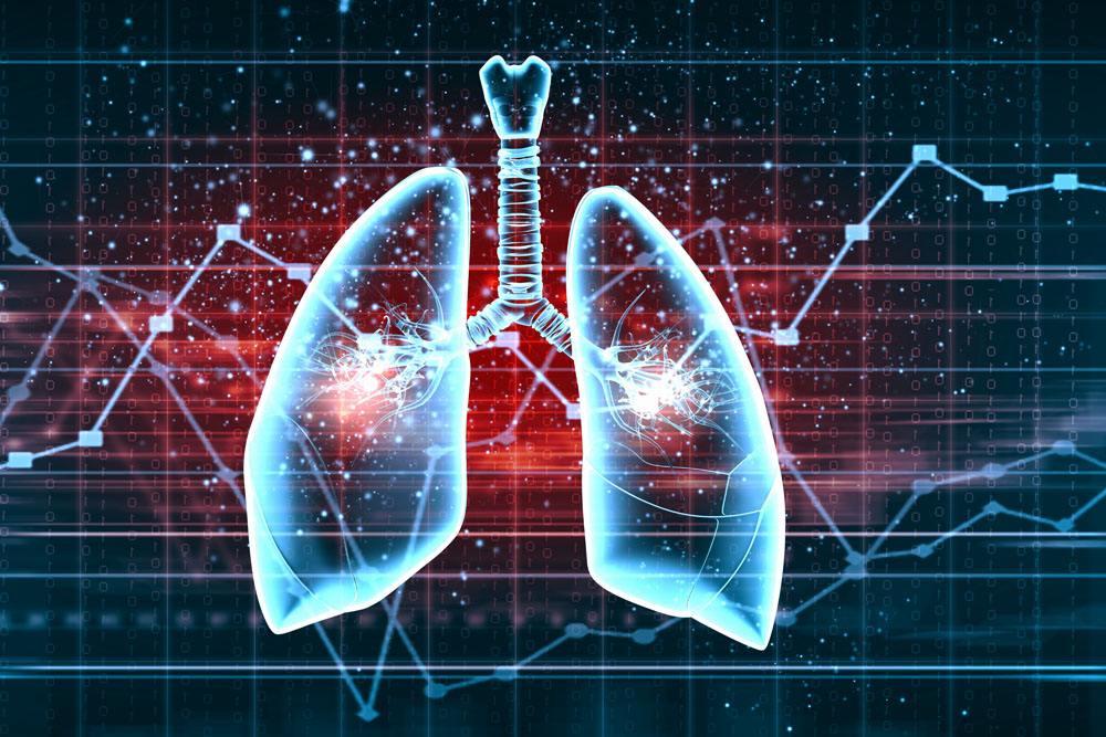 导致肺癌的因素有哪些?