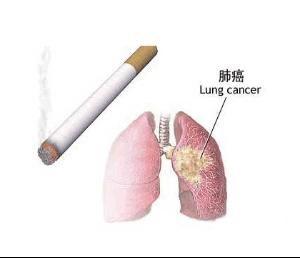 AZD9291在治疗非小细胞肺癌上的成就