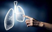 非小细胞肺癌晚期的症状有哪些?