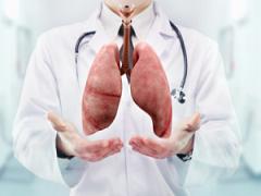 肺癌可能不传染但遗传