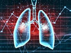 AZD9291治疗T790M阳性肺癌疗效好